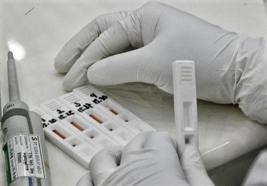 Keuntungan Penelitian Kesehatan Rapid tes Covid 19